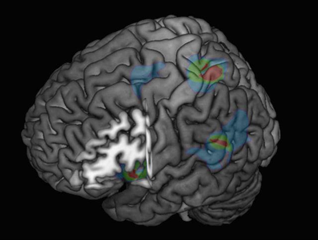 """Подсвеченные участки мозга задействованы в создании различного рода """"сверхъестественных"""" иллюзий и галлюционаций (иллюстрация Blanke et al/EPFL)."""