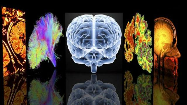 За пробуждение мозга отвечает очень опасный белок орексин (иллюстрация Science Photo Library).