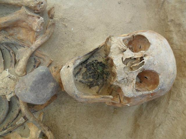 Скелет 45-49-летней женщины с камнем в верхней части горла (фото Gregoricka et al.).