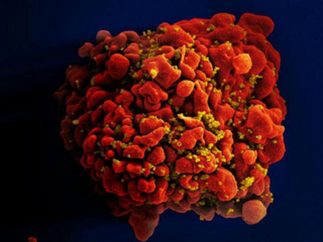 ВИЧ ослабляет свою хватку, но это не означает, что люди должны стать опрометчивее в отношении выбора партнёров (фото NIAID).