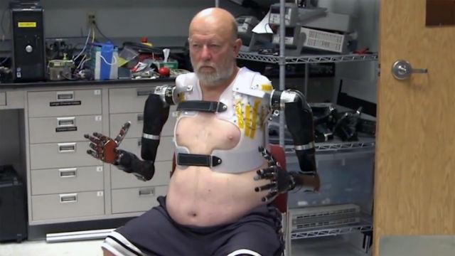 Прототип роборук, управляемых силой мысли, зарекомендовал себя уже на этапе клинических испытаний (фото John Hopkins University).