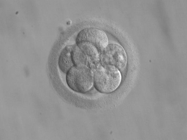 Редактирование генов на ранней стадии развития эмбриона может привести к неожиданным результатам в дальнейшем (фото Wikimedia Commons).