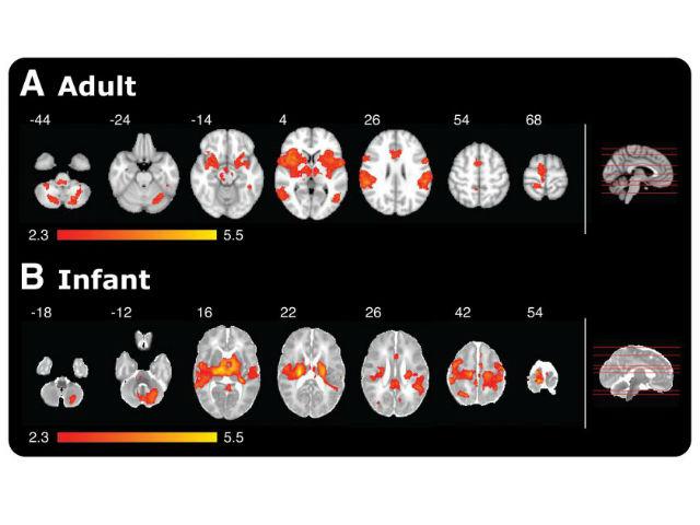 МРТ демонстрирует различие в активности мозга у взрослых и детей во время ощущения боли. Красно-желтые зоны — активные области мозга. Справа — срезы, по которым проводилось сканирование (иллюстрация Sezgi Goksan et al.).