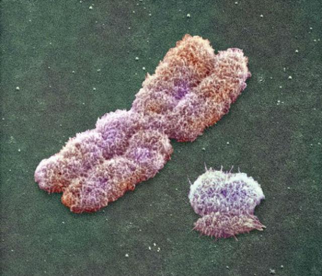 Слева X-хромосома, справа Y-хромосома
