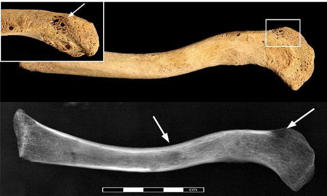 Опухоль, скорее всего, сформировалась в мягких тканях и распространилась в кость (фото Durham University).