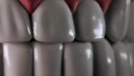 Стоматологи уверяют: от пасты темнеют зубы