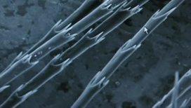 Волосы выводят из организма вредные вещества